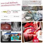 ทารก 4 คน เสียชีวิต เพราะป้อนอาหาร ก่อน 6 เดือน